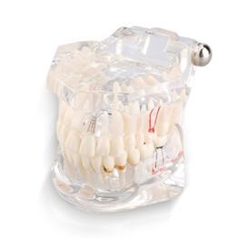 Yosoo Transparent Typodont Dental Zähne Lehr-Studie-Modell Mündliche Abnehmbare Dental-Pädagogisches Modell -